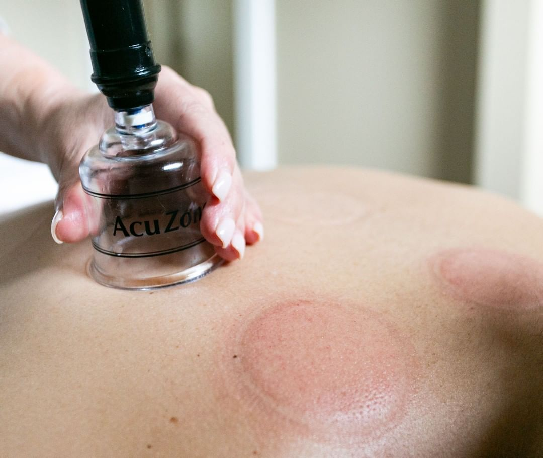 LBI Cupping and Gua Sha is a great, alternative way to help relieve chronic pain, st…